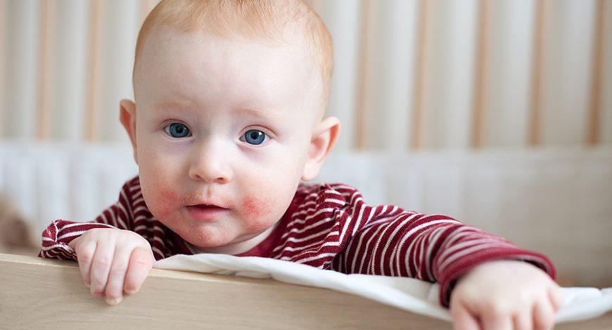 Bệnh chàm ở trẻ trong 1000 ngày đầu đời