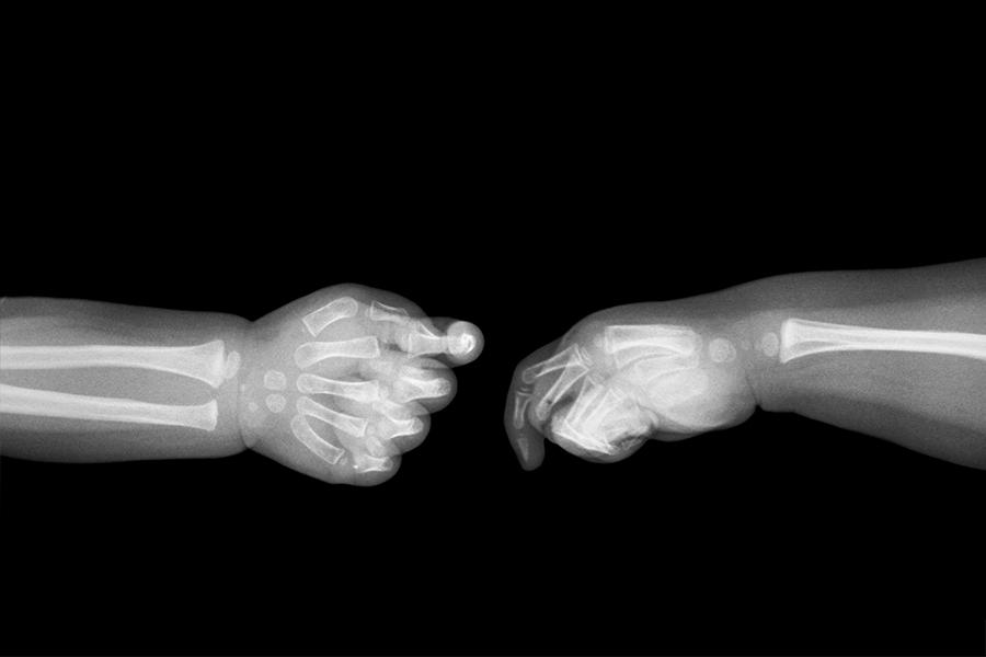 Hình ảnh xương của trẻ sơ sinh