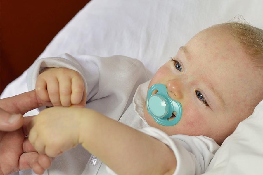 Mẹ nên biết sốt phát ban ở trẻ em cần kiêng gì?